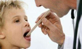 осмотр горла врачем
