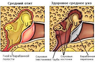 средний отит уха