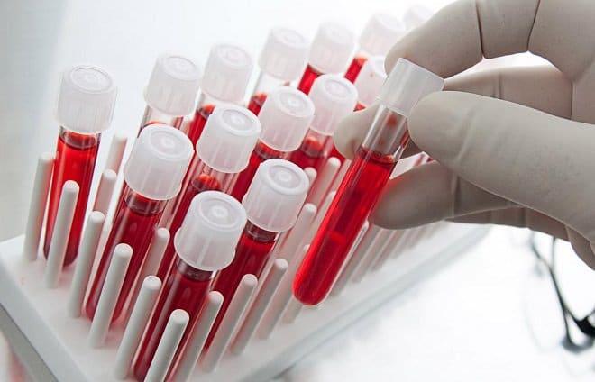 общий анализ крови внебольничная пневмония