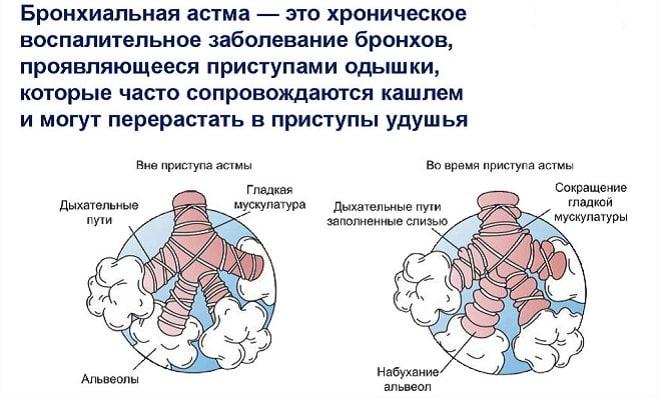 обозначение бронхиальной астмы
