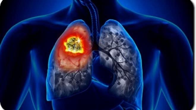легочный абсцесс Крупозная пневмония