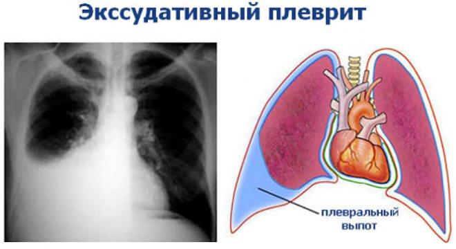 Экссудативный плеврит (выпотной)