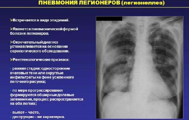 легионеллезная пневмония Болезнь легионеров