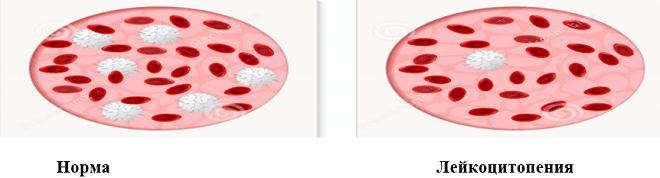 Лейкоцитопения