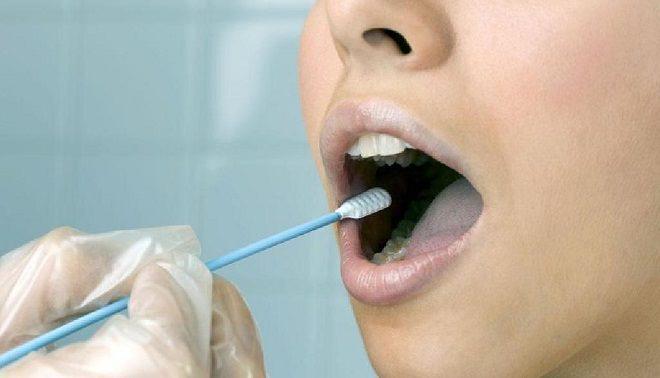 мазок из полости рта