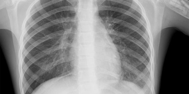 рентген легких - Правосторонняя пневмония