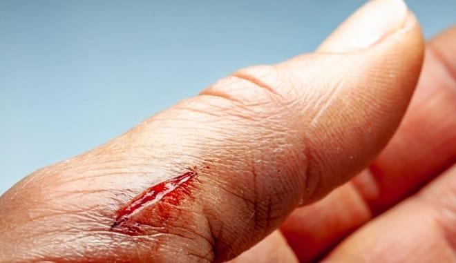 рана на руке