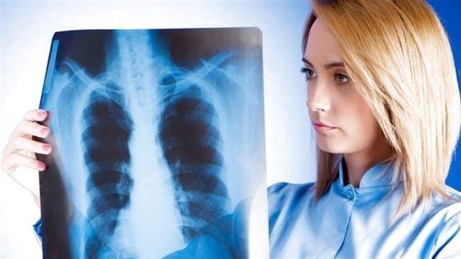 туберкулез на рентгене