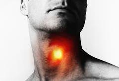 симптомы жжения в горле