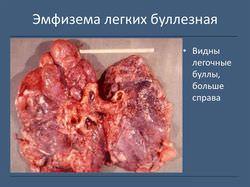 Дырка в легких фото, что это такое, причины, симптомы, методы лечения