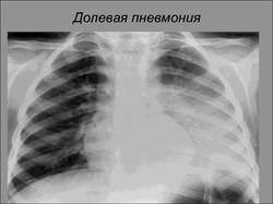 Затемнение в легких: что это может быть, как лечить
