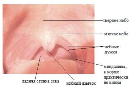 Вирусное горло - virus koksaki