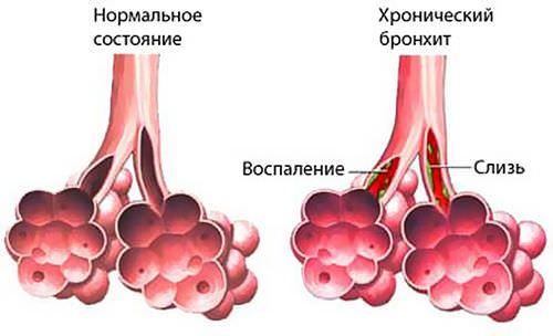 khronicheskij bronkhit