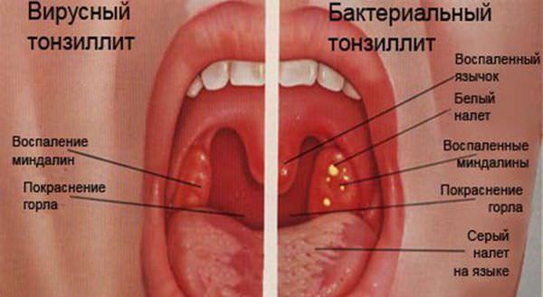 tonsilit
