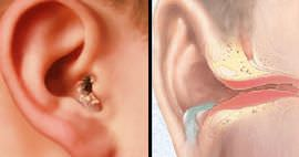Болит горло и отдает в ухо что делать