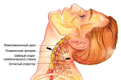 Остеохондроз в шейном отделе когда что-то мешает в горле