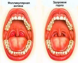 fol angina