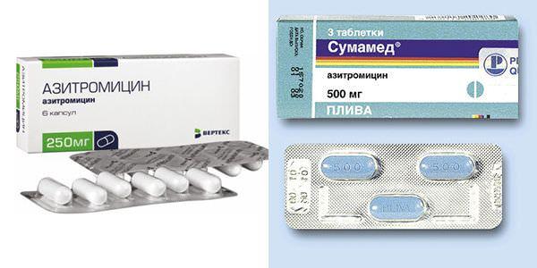 Азитромицин против сумамеда