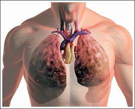 Можно ли заболеть повторно скарлатиной, «ветрянкой», ротавирусом, гриппом, ОРВИ, туберкулезом