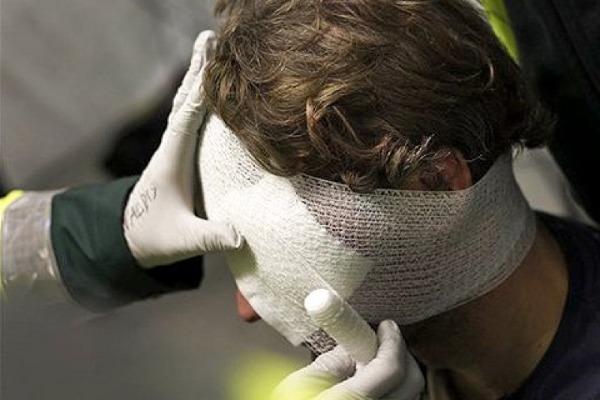 Травма головы