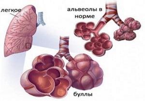 Состояние больных альвеол при буллезной болезни легких