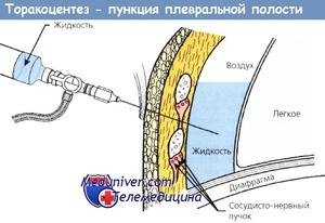 Пункция плевры