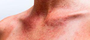 Что делаеть если есть сыпь при мононуклеозе