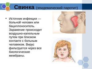 Эпидемический паратит у детей и взрослых