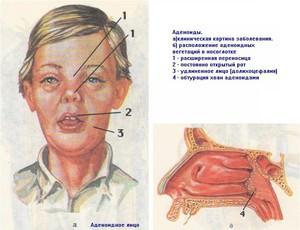 Больной аденоидами