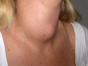 Опухоли гортани как причина чувства кома в горле