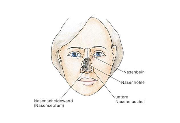 Аносмия