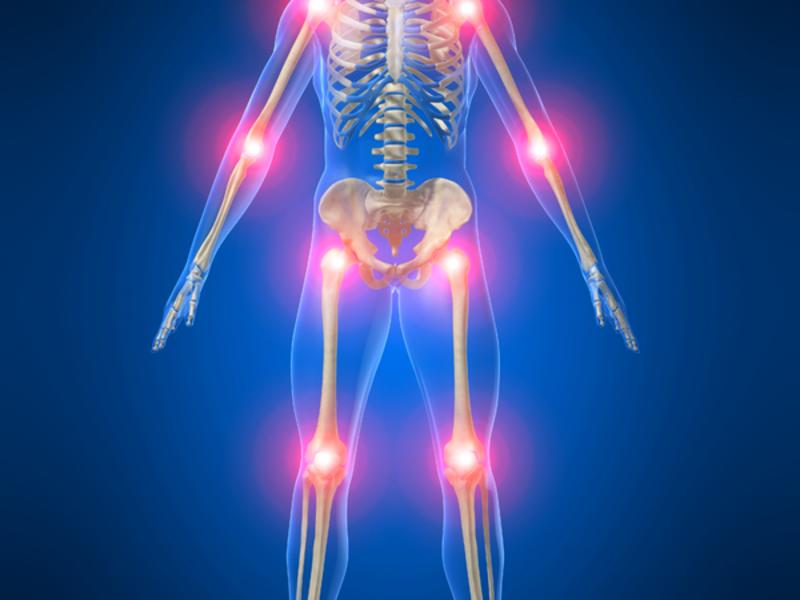 Врачи рекомендуют ибуклин для снятия суставных болей