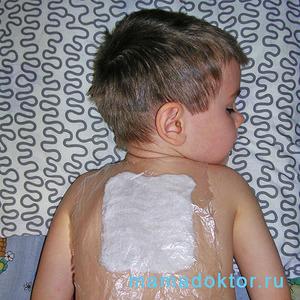 Компресс на спину ребенка от кашля