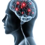 Спазмы сосудов головы