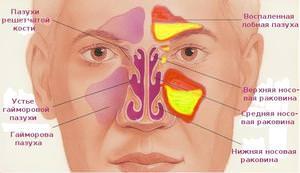 Какие симптомы у гайморита