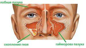 Заболевание гайморит