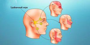 Чем снять воспаление нерва