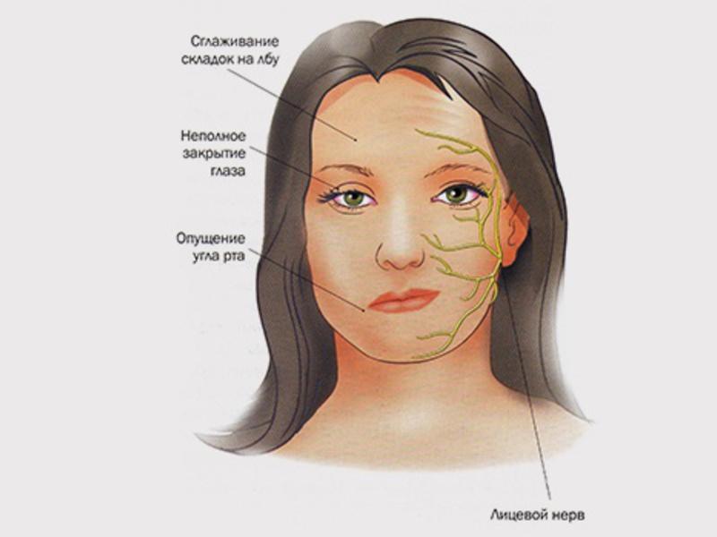 Как вылечить воспаление тройничного нерва