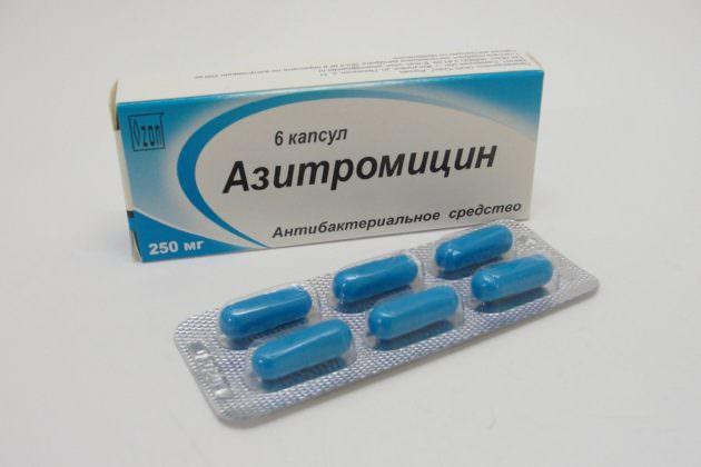 В случае бактериальной инфекции лечение горла не обходится без антибиотиков