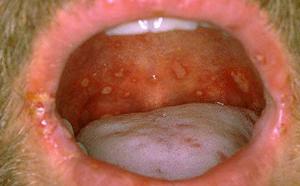 Как лечат стафилококк во рту