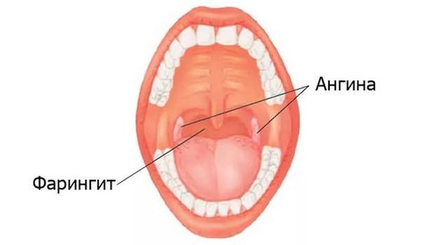 При фарингите обычно горло не болит только с одной стороны