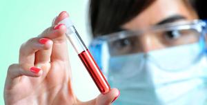 Исследование крови при коклюше