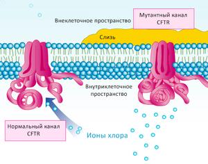Кистозный фиброз причины