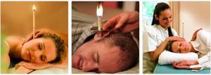 Правила постановки свечи пациенту