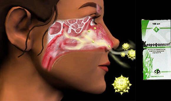 khlorofillipt ot nasmorka pobochiye effecty
