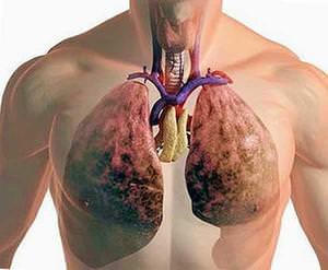 Как лечить кистозный фиброз