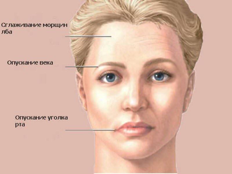 Лечение лицевого и тройничного нервов.