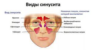 Прчиины заболевания пансинусита