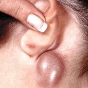 Воспаление за ухом