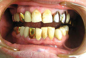 Гальваноз - это заболевание, характеризующееся возникновением электрических токов вследствие наличия металлических протезов в полости рта